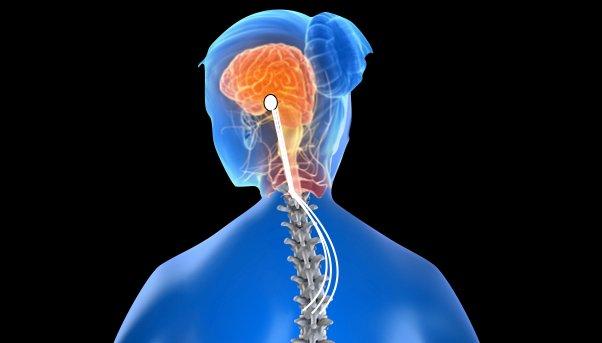 Neuro-Skeletal Scoliosis